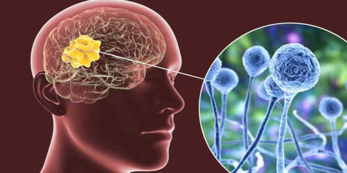 Champignon noir : cette infection dévastatrice liée a la Covid-19
